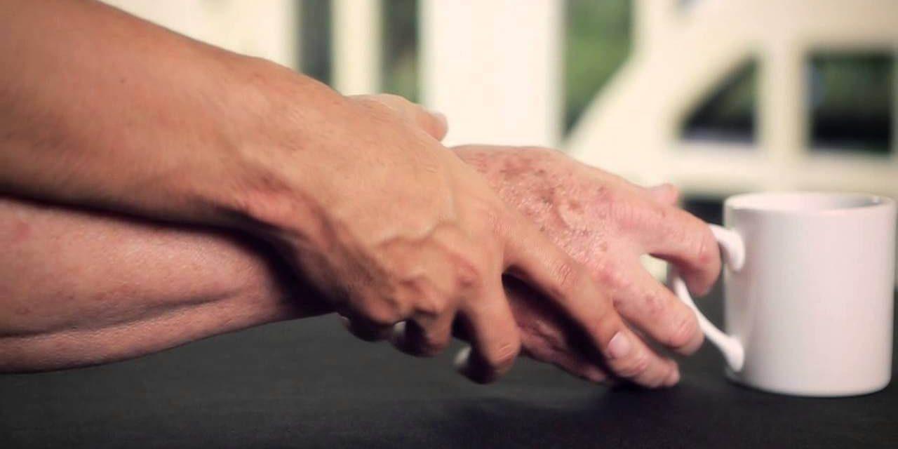 Cirurgia contra parkinson passa a ser realizada pelo SUS Campinas